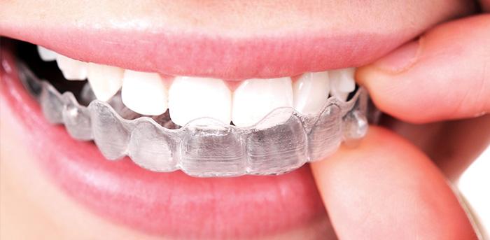 appareil dentaire en espagnol
